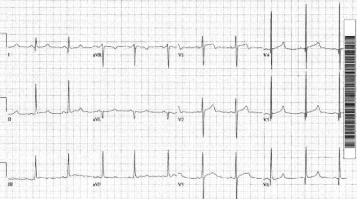 hypertrophic_cardiomyopathy