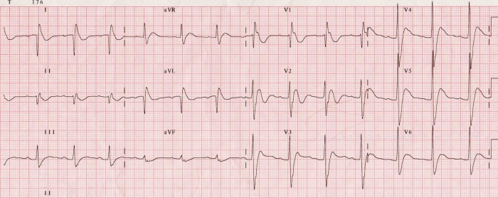 ECG in patient with hypercalcemia