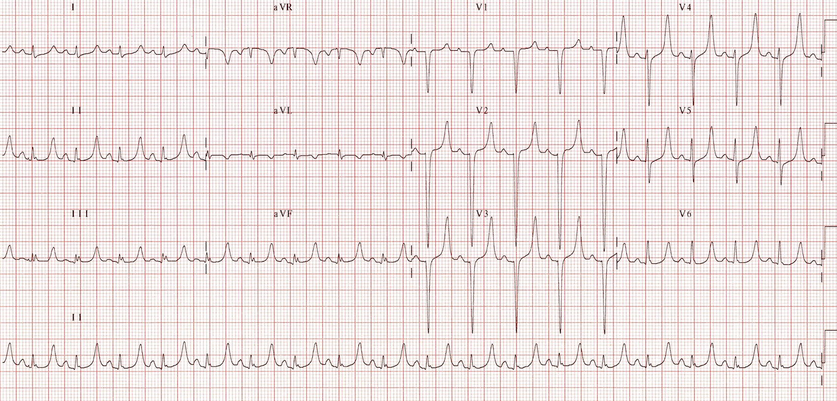 Electrocardiogram (EKG, ECG)