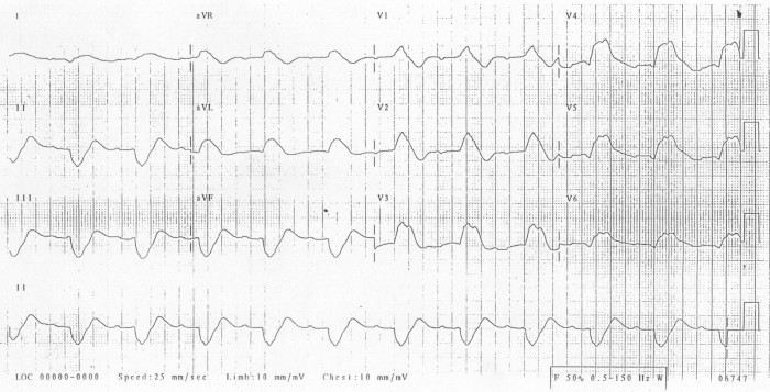 "Note how the PR and QRS lengthen in hyperkalemia until the patient develops a ""sine-wave"" pattern EKG."