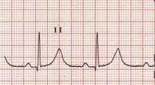 stemi_01_early_repol