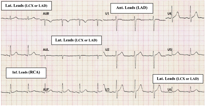 stemi_05_arteries