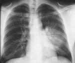 pneumonia_hultgren_cxr_pa