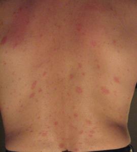 Pityriasis Rosea 2