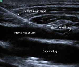 Venous Access Image 12