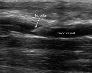 Venous Access Image 6