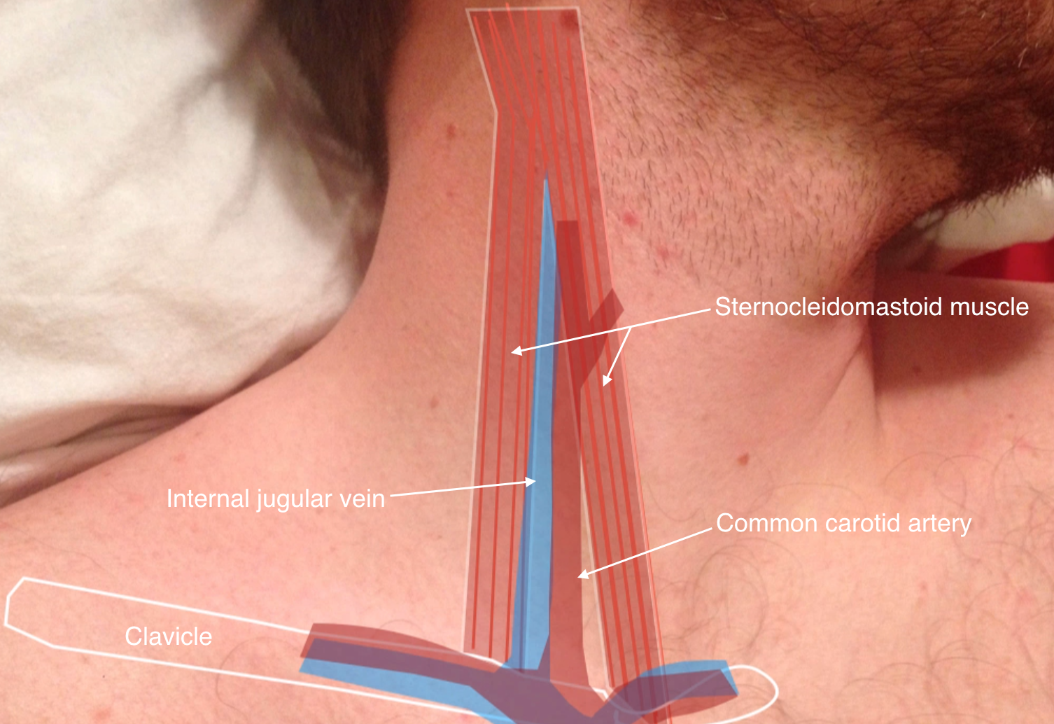 Central line insertion anatomy