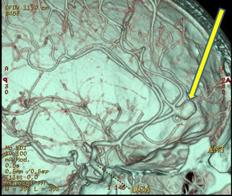 ACA 3D CT