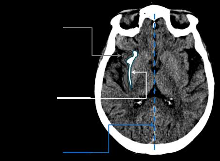 Brain Landmarks 2
