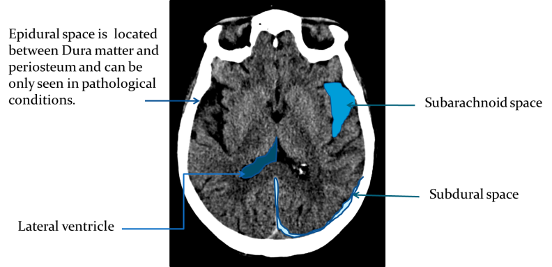 Brain Landmarks