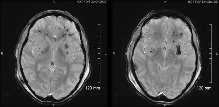 DAI MRI