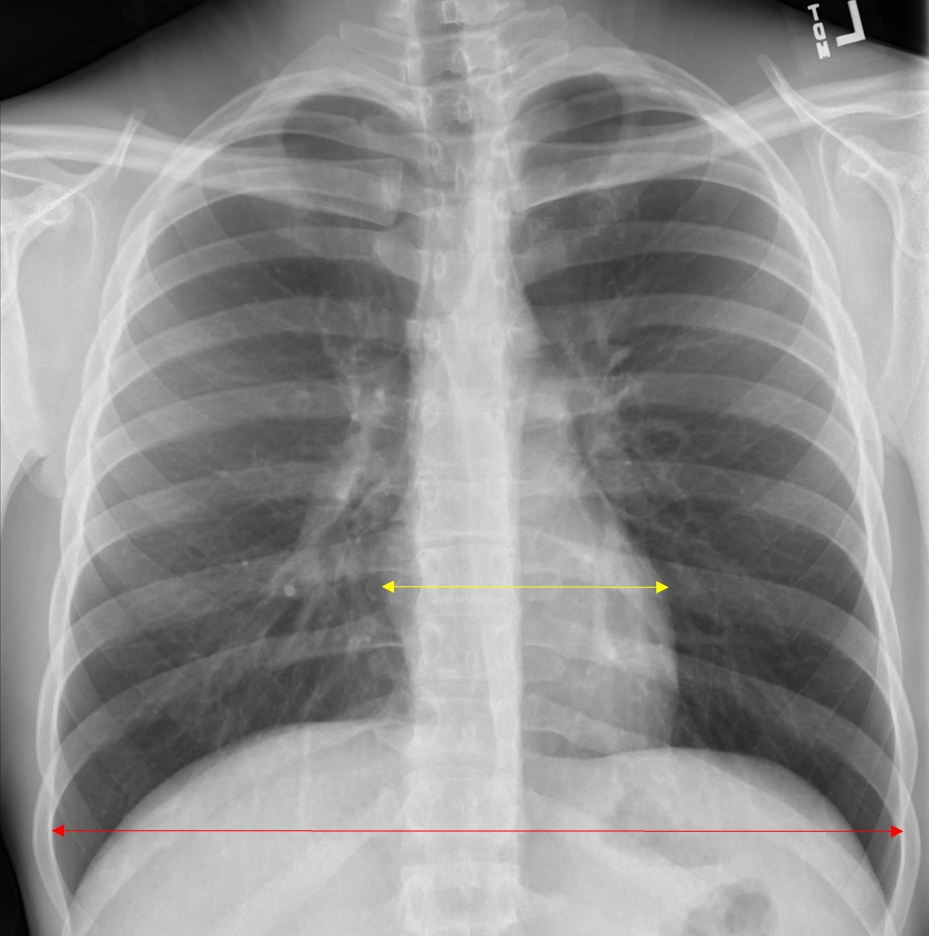 Chest Radiograph