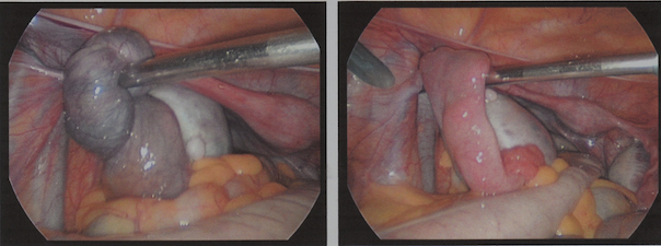 intraop_photos