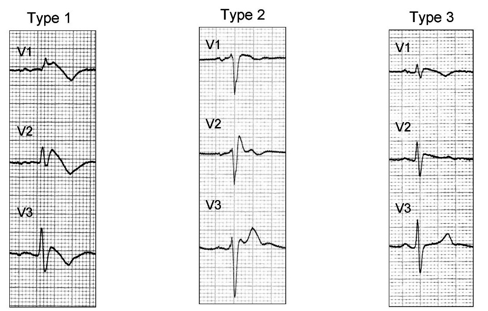 conduction-ecg-10