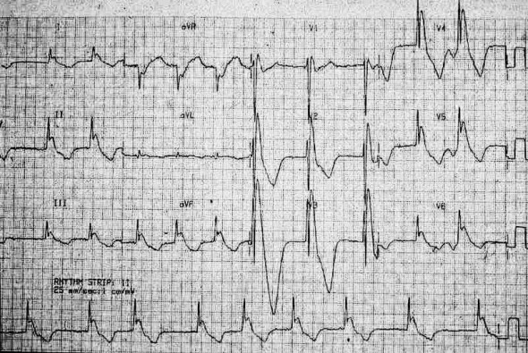 conduction-ecg-11