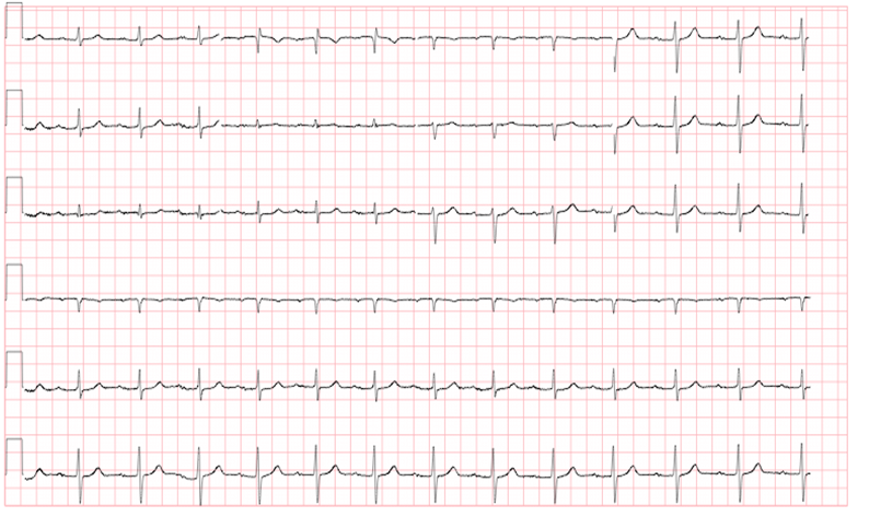 conduction-ecg-1