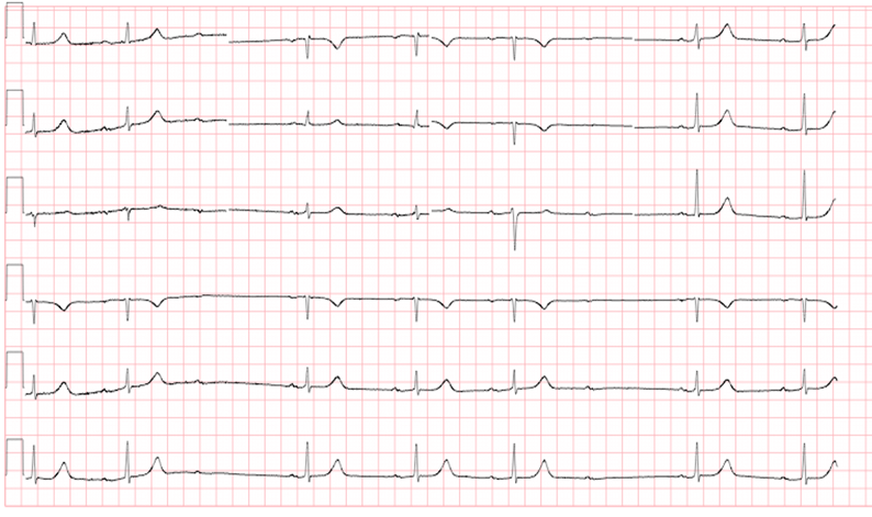conduction-ecg-2