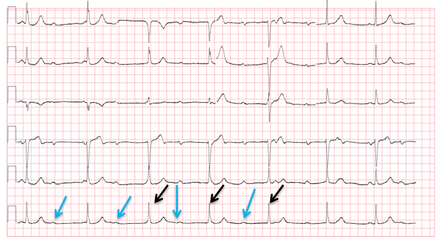conduction-ecg-4