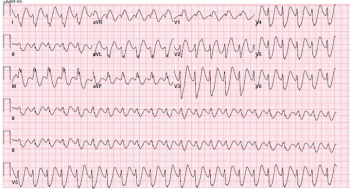 conduction-ecg-5