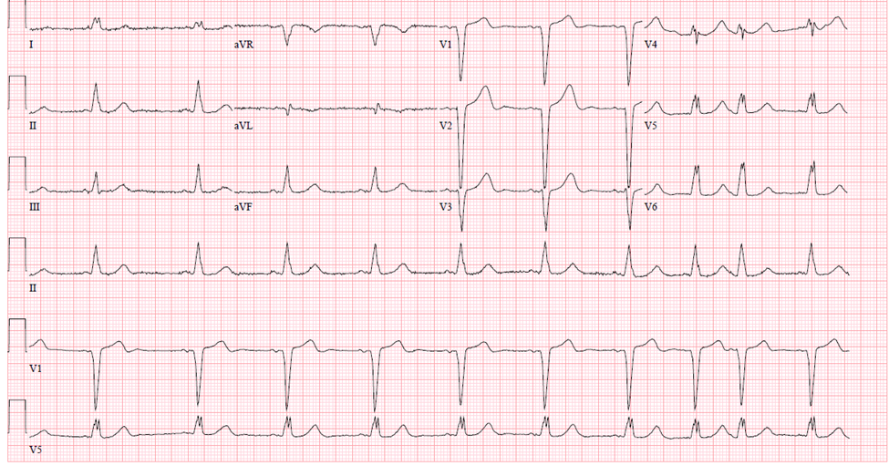 conduction-ecg-6