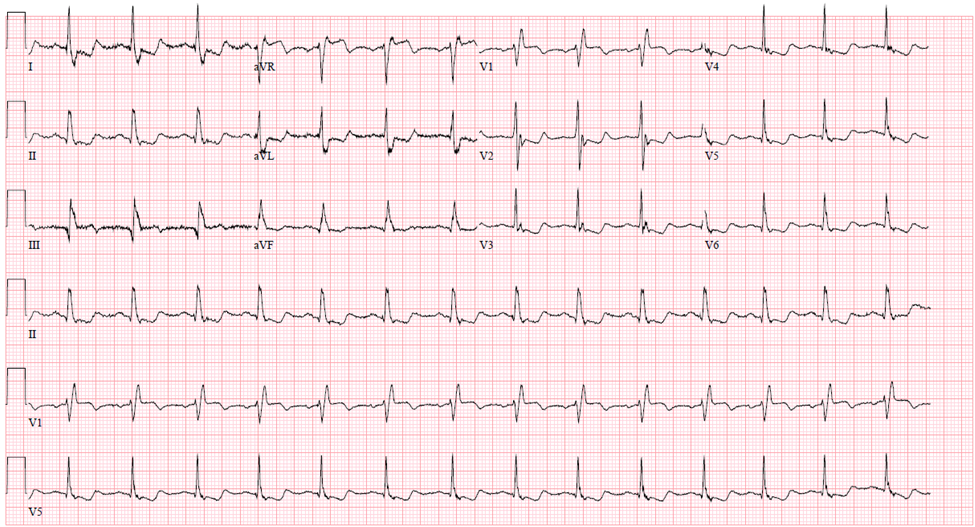 conduction-ecg-7