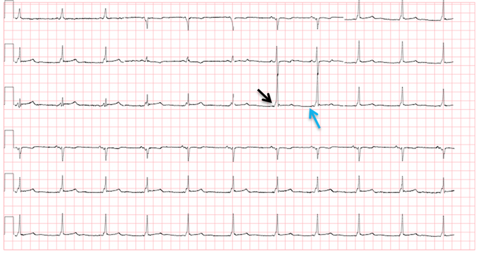 conduction-ecg-8