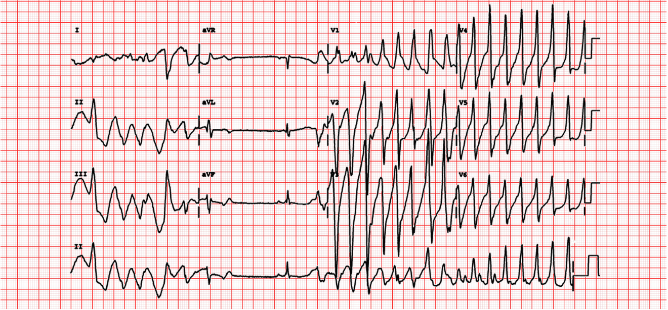 conduction-ecg-9